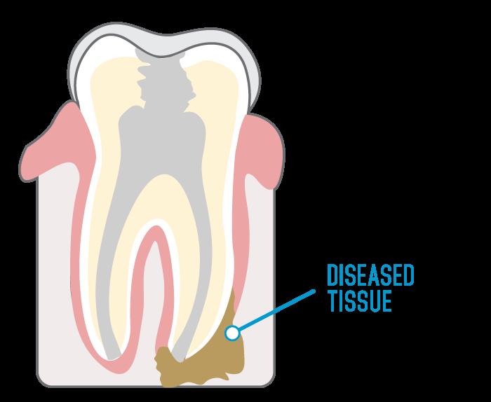 endodontic surgery